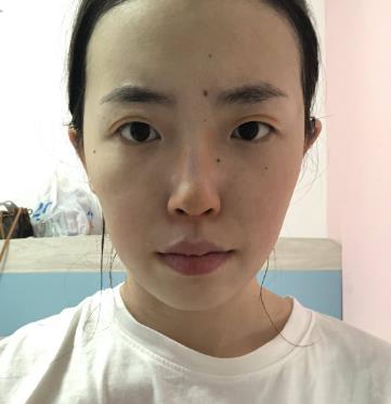 济宁市第一人民医院隆鼻价格,附真人案例前后对比图 知识库 第3张