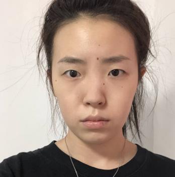 济宁市第一人民医院隆鼻价格,附真人案例前后对比图 知识库 第2张