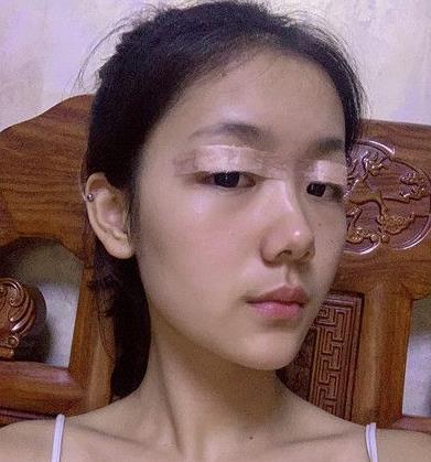 杭州颜控整形双眼皮+隆鼻案例对比图分享,医院实力大解析 知识库 第1张