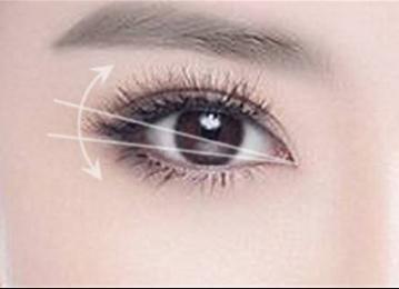 想要拥有迷人双眼皮吗 兰州嘉琳田海峰埋线双眼皮来帮你 知识库 第2张