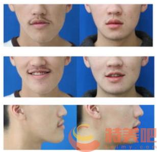 正颌案例 哪些人不适合做正颌手术? 知识库 第2张