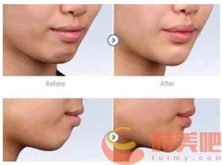 正颌案例 哪些人不适合做正颌手术? 知识库 第3张