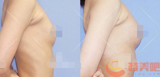 自体脂肪隆胸案例 自体脂肪隆胸前你一定要知道的事! 知识库 第3张