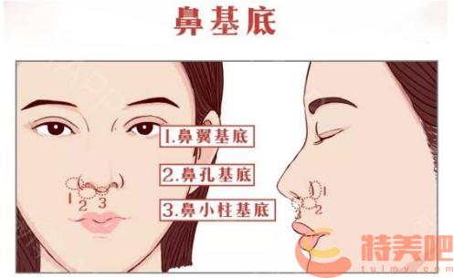 鼻基底 垫鼻基底的手术是怎样做的?手术切口是在哪? 知识库 第1张