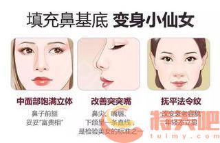 垫鼻基底 垫鼻基底的手术是怎样做的?手术切口是在哪? 知识库 第2张