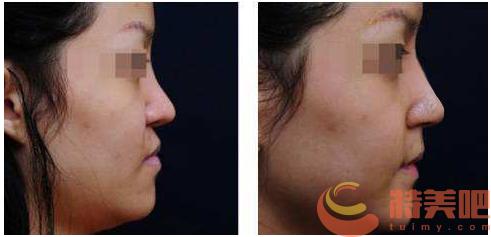 垫鼻基底 垫鼻基底的手术是怎样做的?手术切口是在哪? 知识库 第3张