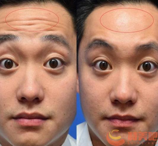 肉毒素去抬头纹案例 去除额头上的皱纹怎么去? 知识库 第2张