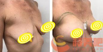 胸下垂矫正案例对比 胸下垂怎么办?如何拯救下垂胸? 知识库 第3张