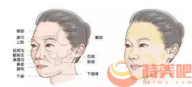 面部脂肪填充 自体脂肪填充吸收了,什么时候再能再去填充? 知识库 第2张