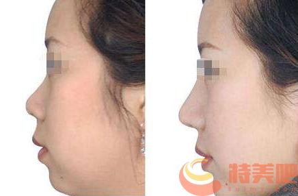 自体软骨隆鼻效果 自体肋软骨和耳软骨来隆鼻哪个更好? 知识库 第3张