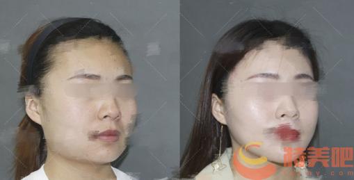 滕利案例 北京八大处滕利和归来改脸型,颧骨,下颌角哪个好? 知识库 第3张