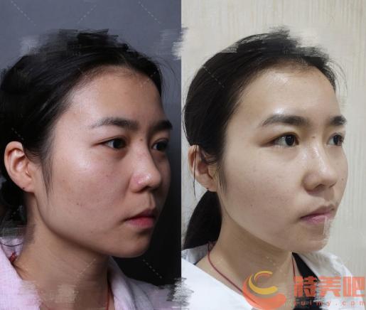 归来案例 北京八大处滕利和归来改脸型,颧骨,下颌角哪个好? 知识库 第5张