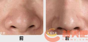 鼻头鼻翼缩小 鼻子大,可以手术缩小吗? 知识库 第3张