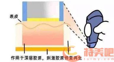 电波拉皮作用原理 电波除皱对皮肤松弛真的有用吗? 知识库 第2张