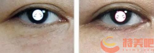 热玛吉眼部 做四代热玛吉的效果好吗?能维持永久吗? 知识库 第2张