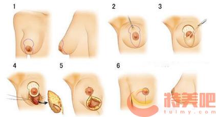 乳房下垂矫正术 胸下垂矫正安全吗? 知识库 第3张