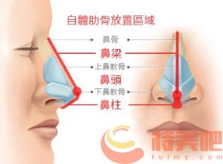 肋骨鼻隆鼻 肋骨鼻是永久的吗? 知识库 第1张