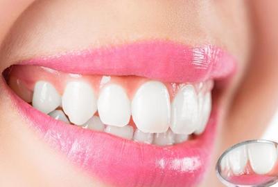 洗牙会不会很疼 第一次洗牙可能会疼怎样预防 洗牙会不会很疼 第一次洗牙可能会疼怎样预防 知识库 第1张