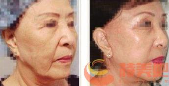 面部拉皮案例 面部拉皮手术能维持几年? 知识库 第1张