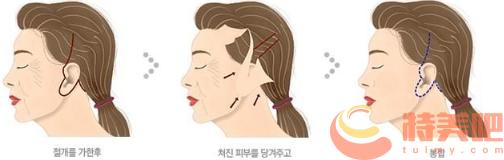 面部拉皮过程 面部拉皮手术能维持几年? 知识库 第2张