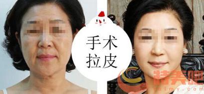 面部拉皮手术 面部拉皮手术能维持几年? 知识库 第3张