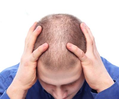 肾虚头顶脱发怎么治疗 知识库