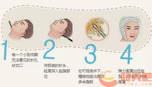 面部吸脂 面部吸脂后会反弹复胖吗?可能会有哪些后遗症呢? 知识库 第2张