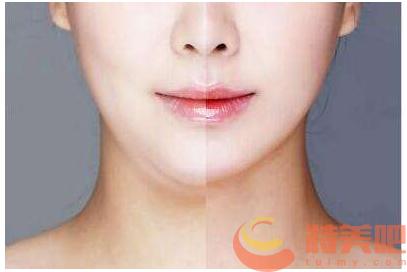 面部吸脂 面部吸脂后会反弹复胖吗?可能会有哪些后遗症呢? 知识库 第1张