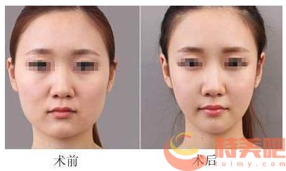 面部吸脂案例 面部吸脂后会反弹复胖吗?可能会有哪些后遗症呢? 知识库 第3张