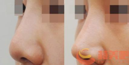 耳软骨隆鼻 耳软骨隆鼻可以保持永久吗? 知识库 第3张