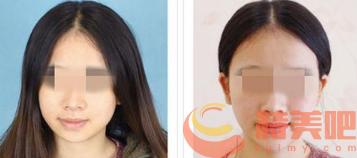 磨骨风险 磨骨瘦脸需要注意什么?有没有风险 知识库 第2张