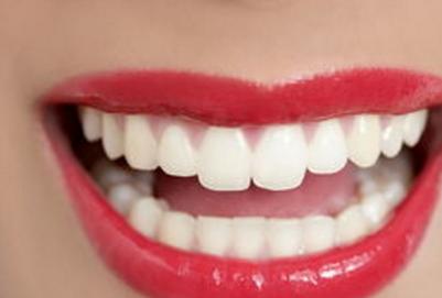 什么是牙齿贴片 微创性牙齿美白方式 什么是牙齿贴片 微创性牙齿美白方式 知识库 第1张
