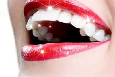 什么是牙齿贴片 微创性牙齿美白方式 什么是牙齿贴片 微创性牙齿美白方式 知识库 第2张