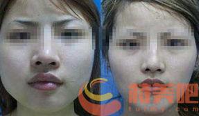 磨骨瘦脸对比 磨骨瘦脸有没有什么风险? 知识库 第1张