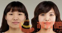 磨骨瘦脸效果 磨骨瘦脸有没有什么风险? 知识库 第2张