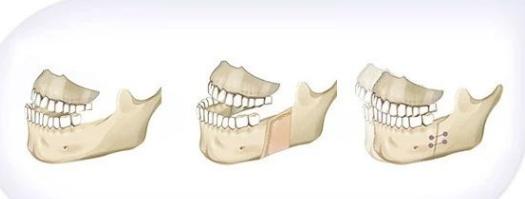正颌手术 地包天做正颌手术疼吗?会疼多久? 知识库 第2张