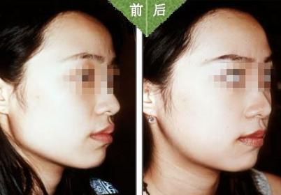 下颌角手术 下颌角手术术后为什么会出现双下巴呢? 知识库 第1张