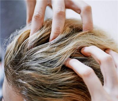 如何最大化头发种植效果 知识库 第1张