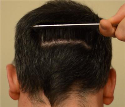 如何最大化头发种植效果 知识库 第2张