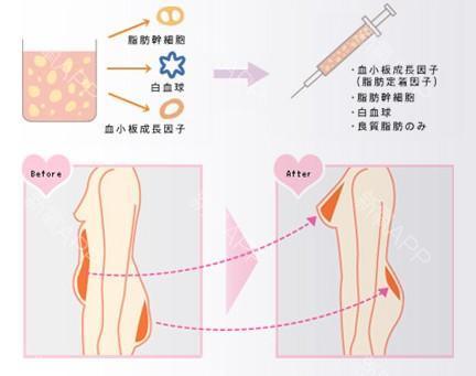 自体脂肪隆胸示意图 自体脂肪隆胸术后注意事项 知识库 第1张
