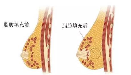 自体脂肪隆胸 自体脂肪隆胸术后注意事项 知识库 第2张