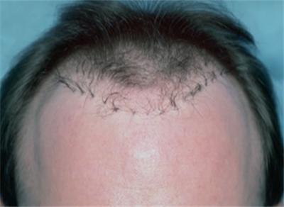 什么是头发修复 知识库 第1张