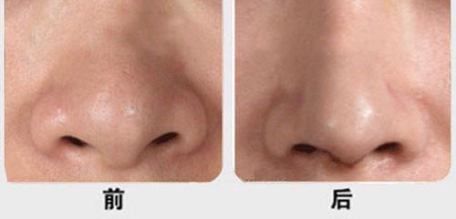 做鼻头缩小手术会不会有什么后遗症? 知识库 第2张