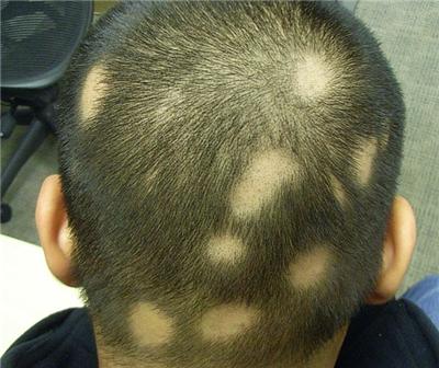 斑秃是什么原因引起的 知识库 第1张