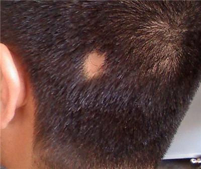 斑秃是什么原因引起的 知识库 第2张