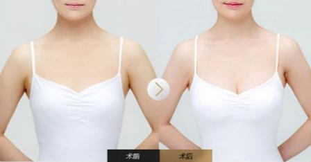 自体脂肪丰胸案例 广州华美整形医院自体脂肪丰胸价格是多少呢?自体脂肪丰胸要做几次? 知识库 第3张