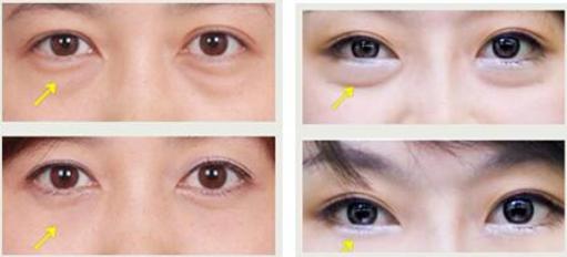 去眼袋 内切去眼袋和外切去眼袋有什么区别? 知识库 第3张