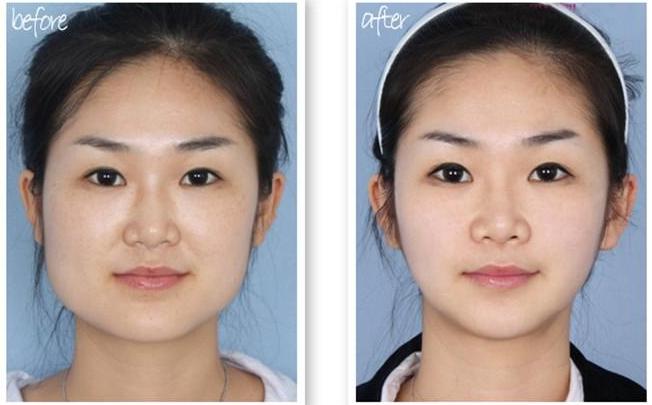 下颌角整形案例 下颌角整形是磨骨、截骨还是削骨?下颌角整形的手术过程是怎样的? 知识库 第3张