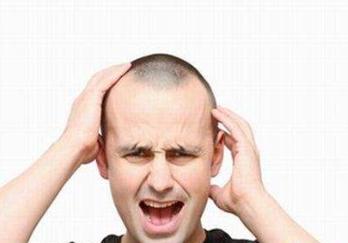 导致男性脱发的因素,你知道几个 知识库