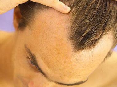 雄性激素过低会导致脱发吗 知识库